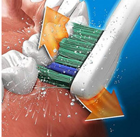 Brushing technique brossage Sonicare orthodontie Sherbrooke