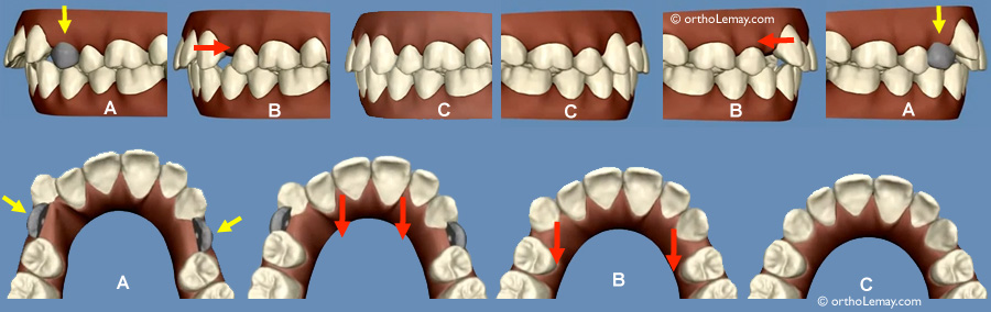 Extraction de prémolaires et traitement Invisalign
