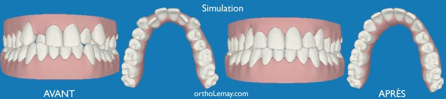 SImulation virtuelle d'un traitement Invisalign