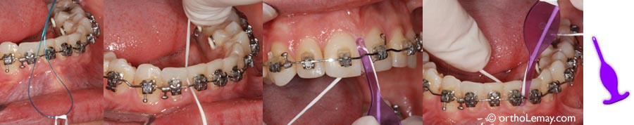 Aids like threaders allow the use of dental floss during your orthodontic treatment with fixed appliances braces).