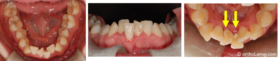 Overlapping and misaligned teeth are harder to clean and facilitate accumulation of dental plaque and formation of tartar.