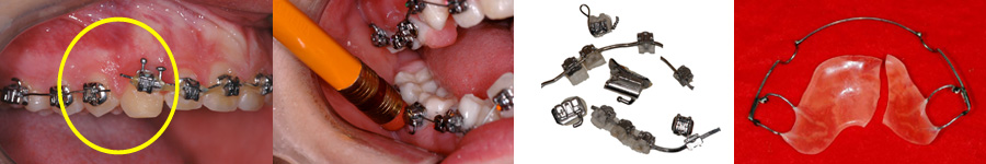 Urgence orthodontique orthodontic emergency lemay