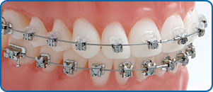 Damon clear braces broches boîtiers Damon orthodontistes Lemay
