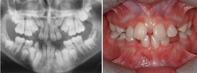 A panoramic X-ray allows the evaluation in more depth what is not always visible in the mouth