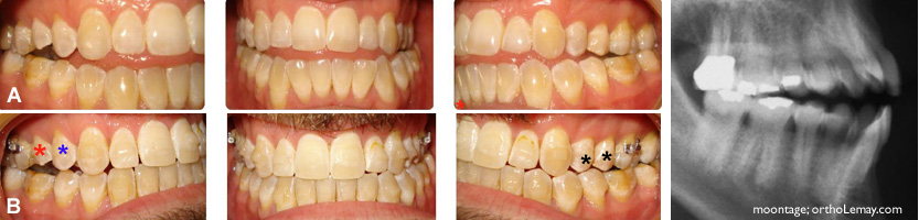 beance exces vertical posterieur malocclusionorthodontie