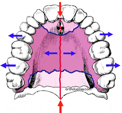 Palatal maxillary suture and orthodontic expansion