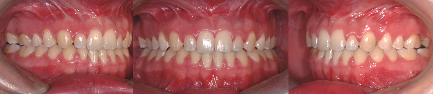 Closing of the anterior open bite following the orthodontic treatment and a jaw surgery. This results in a better function (mastication and phonetics).