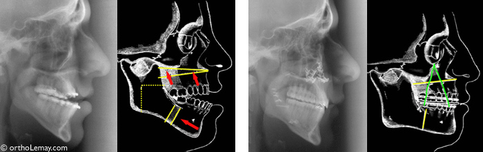 Radiographs before and after the surgery and diagrams illustrating the jaw movements