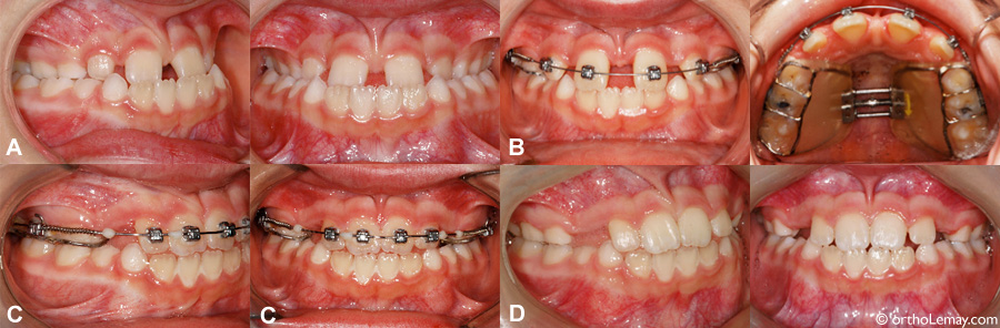 Orthodontic maxillary expansion and braces