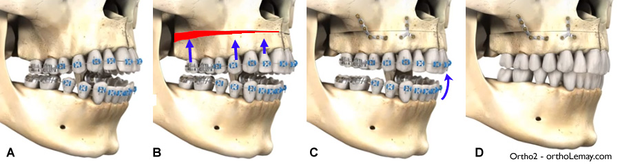 Maxillary impaction orthognathic surgery and orthodontics for an anterior open bite.