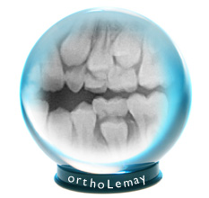 Radiographs are a crystal ball predicting the future of dental eruption.