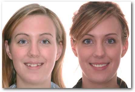 Sourire CC 043228 S orthodontiste Lemay Sherbrooke