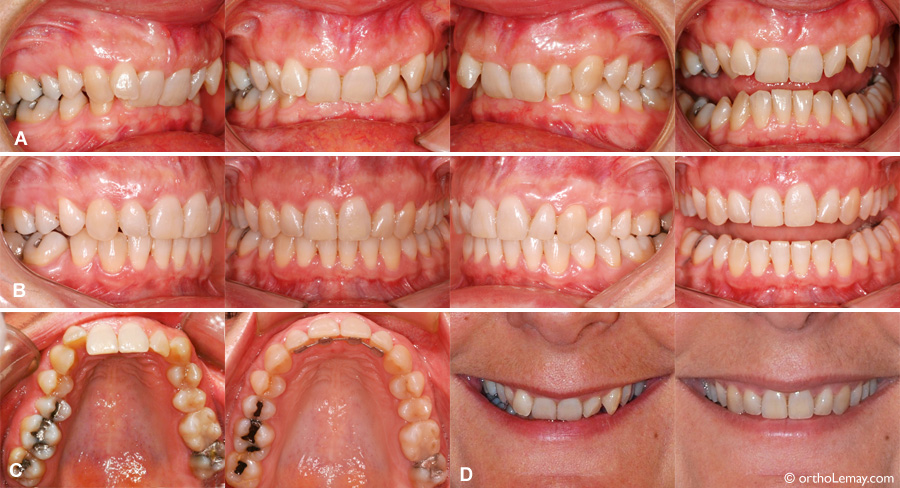 Correction of a Class II division 2 malocclusion adult in orthodontics.