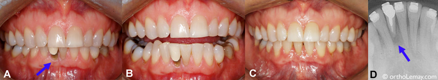 Extraction of a severely damaged incisor and orthodontic treatment.