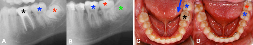 Extraction of a molar and recuperation of the wisdom tooth in orthodontics