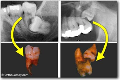 Examples of impacted wisdom teeth (third molars) located under the second molars that started to resorb the roots to such an extent that second and third molars had to be extracted.