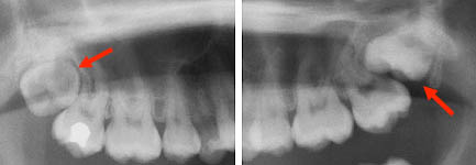 Upper third molar eruption problems. Only a radiograph can detect this anomaly (25-year-old woman).