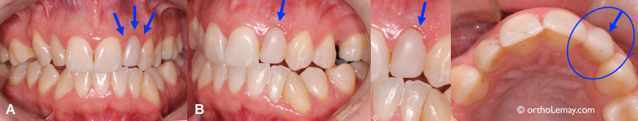 Inflammation gingivale chronique et restauration dentaire.