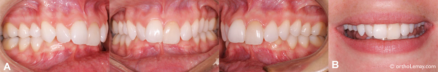 Malocclusion dentaire avec surplomb vertical excessif