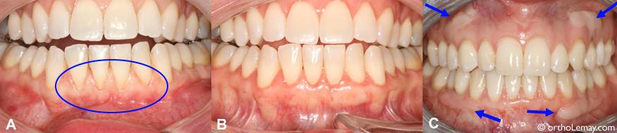 Anterior lower gum (gingival) graft