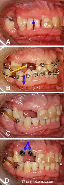 Restauration de la dimension verticale en orthodontie pré prosthodontique.