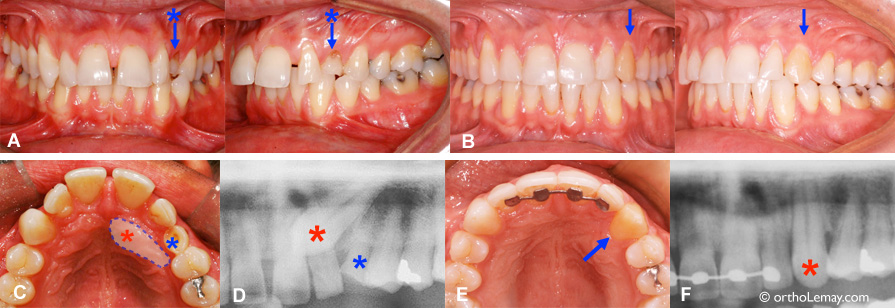 Impacted canine treated in orthodontics in an adult. Orthodontist Lemay Sherbrooke orthodontics by Lemay orthodontists