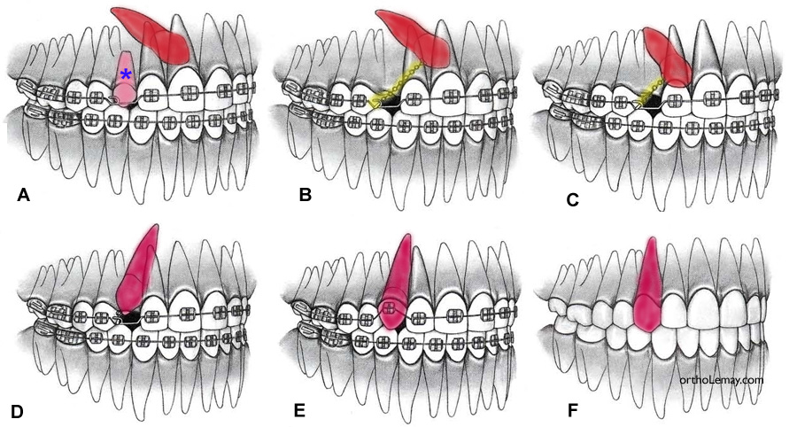 Impacted and ectopic canines | Bücco