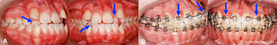 Chevauchement malocclusion dentaire traitement orthodontie