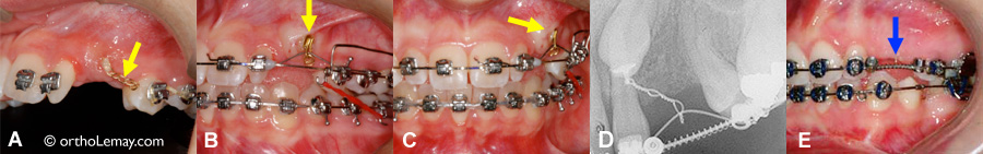 Impacted canine incluse and orthodontic traction
