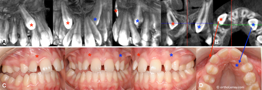 Canine incluse et diagnostic radiologique averc CBCT / tomodensitométrie volumique à faisceau conique (TVFC) en orthodontie