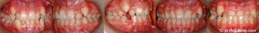Ectopic cuspids orthodontics
