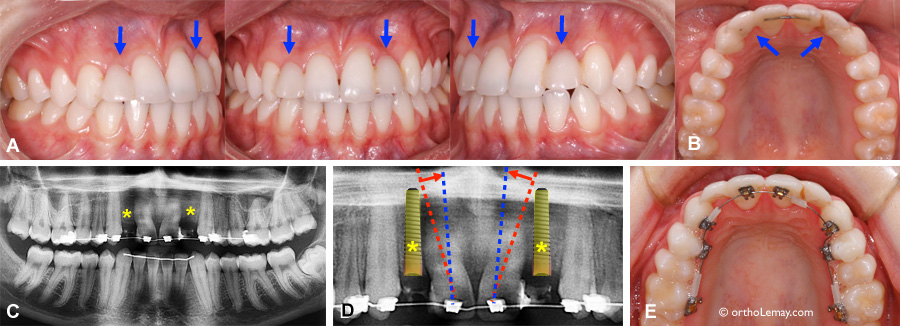 Inadequate position of the roots to install dental implants
