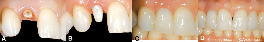 Example of the use of an immediate dental implant. (A) The root of the fractured tooth is considered useless to support a new crown. (B) Therefore, the root was extracted and replaced by an implant with a pillar inserted into the bone alveolus where the root was located. (C) Afterward, a crown is fixated onto the pillar and matches the shape and color of the adjacent teeth for maximized esthetics (D). (Courtesy, Dre K. Archambault)