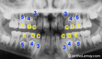 Radiographie dentaire dentition temporaire malocclusion