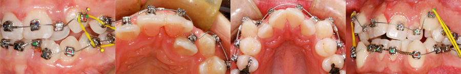 Fil flexible en CuNiTi utilisé en orthodontie