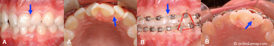 Rotation dentaire, malocclusion et carie dentaire. Correction en orthodontie.