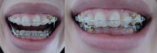 malocclusion avec overbite etoverjet excessifs