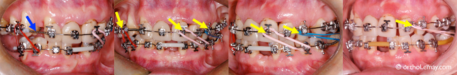 Correction de la ligne médiane en orthodontie