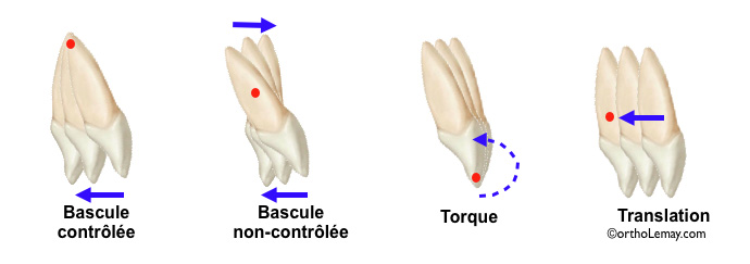 Mouvements dentaires orthodontiques; torque, tipping, bascule, translation