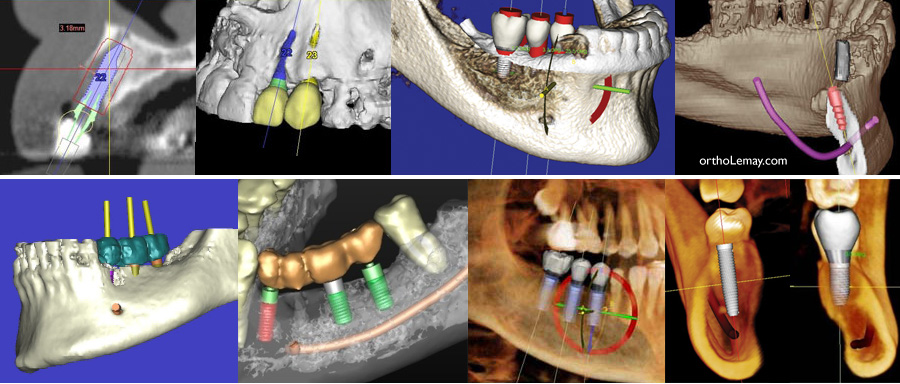 CBCT 3D radiogrpahie et la planification d'implants dentaires.
