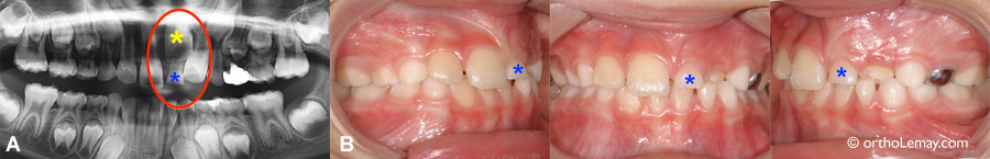 Dental late eruption obstruction 538350 AP8