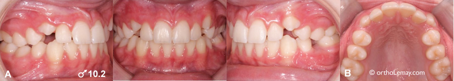 Early fast dental eruption orthodontics 537755 TH9
