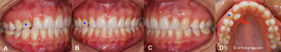 Dental late eruption or neglected supervision?