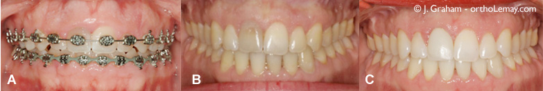 Correction d'un sourire gingival en orthodontie. Dr John Graham.