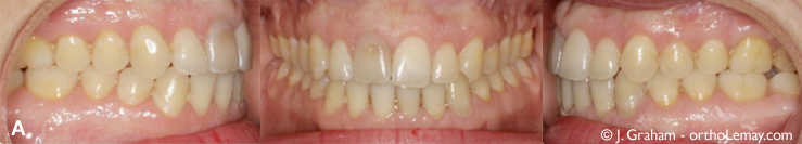 Occlusion suite à la correction d'un sourire gingival (gummy) à l'aide de mini-vis d'ancrage TADs. Dr John Graham orthodontist