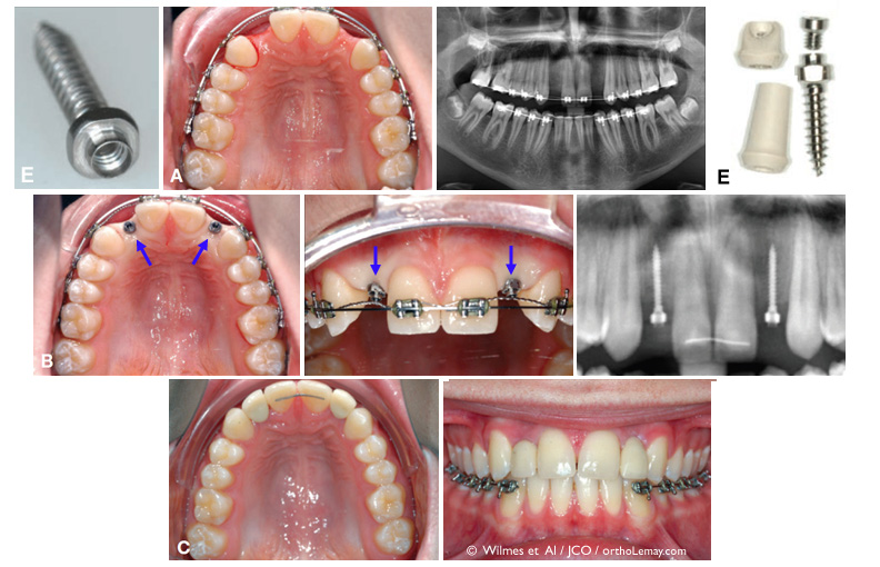 Use of anchorage mini-screws to support a crown and preserve the alveolar bone after an orthodontic treatment