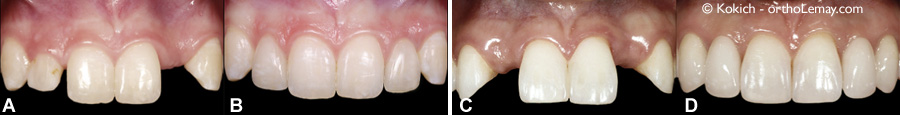 Dental restorations to replace missing lateral incisors using orthodontics and prosthodontics