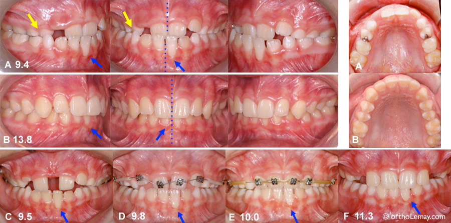 Expansion phase 1 seulement RPE interception orthodontique