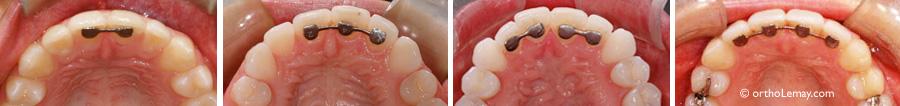 Attelle de contention orthodontique fixe