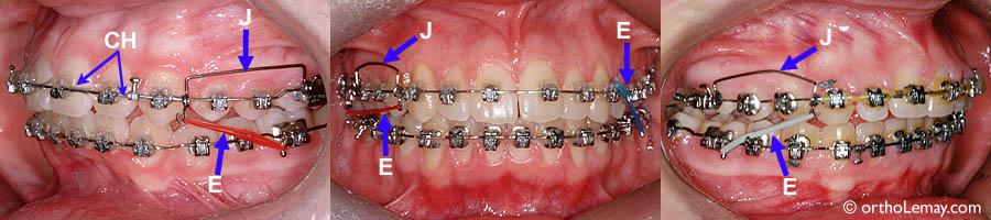 B- Boîtier (bracket), T- Tube de molaire (tube), C- Crochet sur fil pour élastique (hook), CM- Crochet sur tube de molaire, E- Élastique, R- Ressort ouvert (open coil), F- Fil (wire), L- Ligature pour élastique